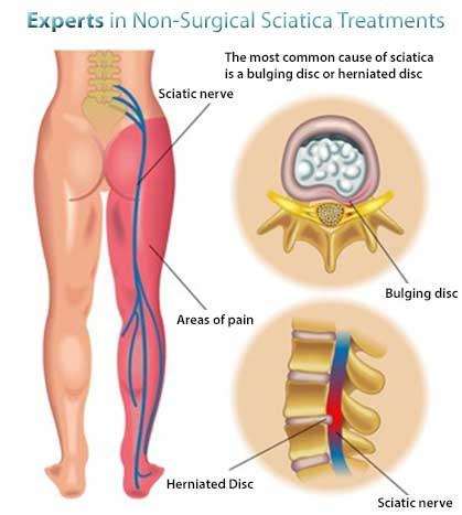 1sciatica-treatment-nyc-doctor